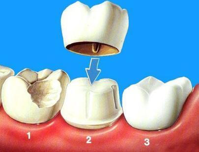 烤瓷牙應該注意以下這三個問題