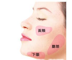 面部吸脂术后恢复时间需要多久