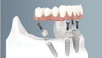 种植牙创伤小吗