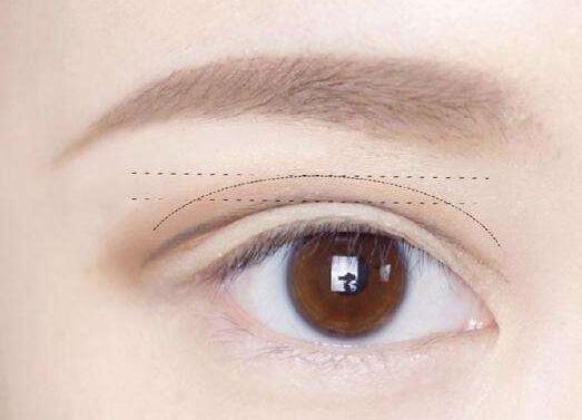 十月爆料:选择做双眼皮手术