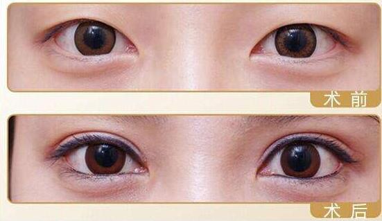 十月报道:割双眼皮手术如何冷敷/热敷才有利于恢复