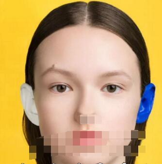 十月报道:假体隆鼻快速恢复化妆