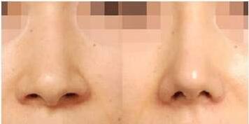 十月爆料:选择做鼻翼缩小手术