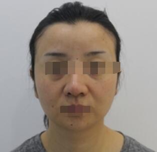 广州下巴吸脂案例 分享前后的变化心得了