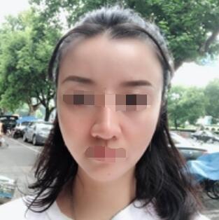 广州下巴吸脂案例