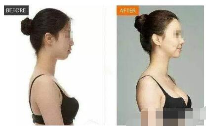 北京联合丽格医院做假体隆胸手术
