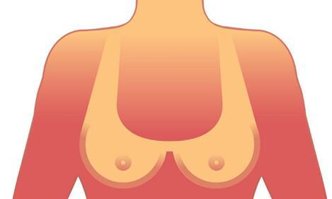十月爆料:选择假体隆胸手术