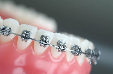 牙齿矫正在年龄方面有限制吗