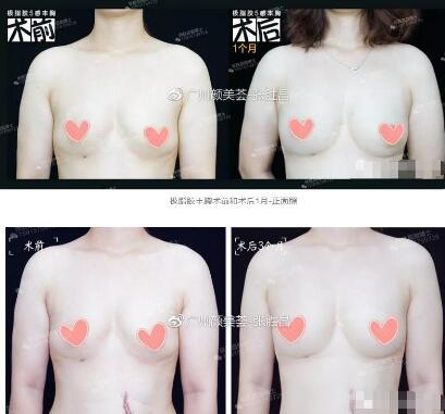广州颜美荟整形张胜昌极脂胶隆胸案例