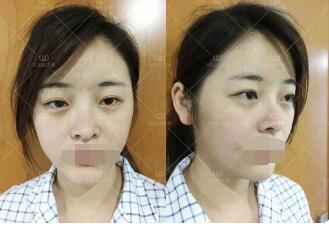 杭州华山连天美整形刘军自体脂肪填充额头和面颊+双眼皮案例分享