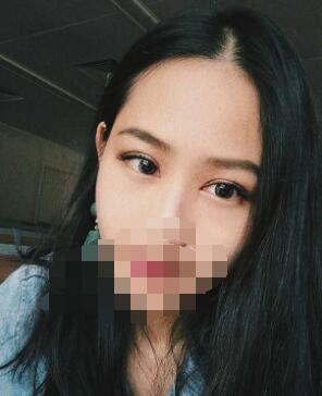 广州紫馨整形曹仁昌双眼皮案例