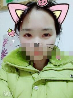 武汉江小美整形双眼皮案例