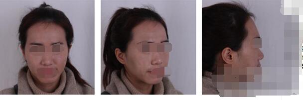 长沙南湖和睦整形张军辉自体脂肪填充全脸案例 术后50天了