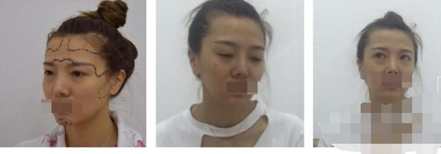 成都天美医院做自体脂肪填充全脸案例 刘向文医生技术口碑好