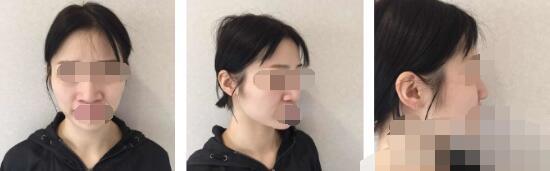 上海万众整形蒲于红自体脂肪填充全脸案例 术后超级满意