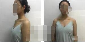 上海九院整形章一新隆胸案例 術后110天了手術很成功也很滿意哦