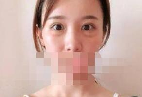 武漢江小美整形去眼袋案例 說說我術后的一些感想