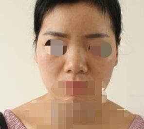 上海九月整形余東自體耳軟骨隆鼻手術案例 分享術后35天的變化圖