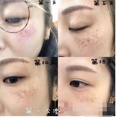 北京可思美整形斯勤醫生激光祛斑案例 分享120天美膚效果變化