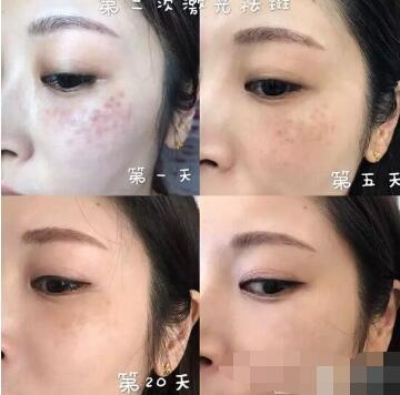 北京可思美整形斯勤医生激光祛斑案例