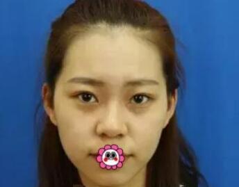 北京八大處整形陳煥然做雙眼皮案例 分享45天術后效果心里樂開花