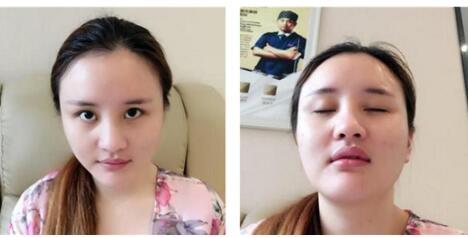 武漢媄妲醫院分享眼部綜合術+膨體隆鼻+自體脂肪填充太陽穴案例