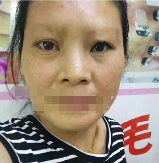 成都美容整形張莉做面部除皺案例 分享術后效果心里美滋滋的