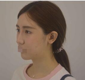 武漢洪山愛美匯整形翟敏做面部吸脂案例 分享精致臉型的全過程