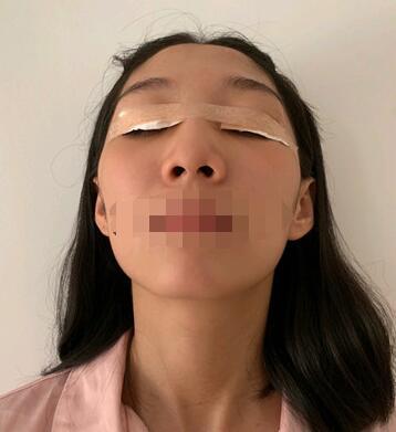 寧波唯格整形劉星宇做雙眼皮案例 分享術后心得體會 附加照片