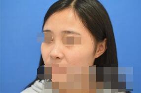 广州健丽整形王科学玻尿酸隆鼻案例 术后两周了对鼻子恢复很满意