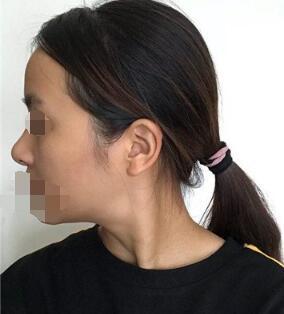 成都铜雀台整形美自体耳软骨隆鼻案例 术后40天恢复的很棒棒