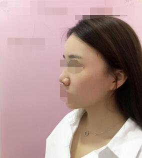 武汉�Z妲整形朱晓浩硅胶隆鼻案例 术后200天美美哒的哦