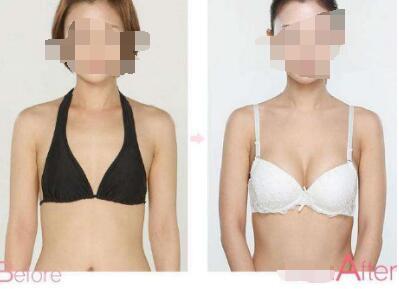 西安西京整形杨青医生隆胸案例分享 附加2019胸部价格