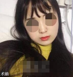 上海首尔丽格整形朴兴植双颚手术案例 简单跟大家分享我的心得