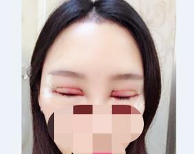 北京协和医院整形范巨峰双眼皮案例 术后很自然分享给大家参考了