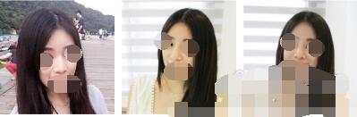 广州贝漾美天整形冀晨阳膨体隆鼻案例 简单说下变美心得和分享图