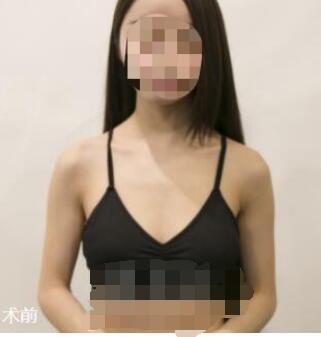 广州曙光整形刘杰伟隆胸手术案例 术后满足了自己的愿望 快来看