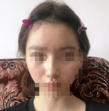 上海华美整形李健隆鼻案例 给大家分享近期变化了