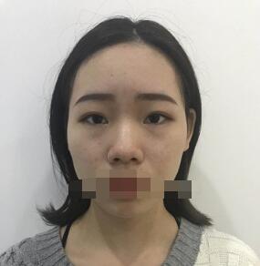 武汉伊美馨整形黄蕾做假体隆鼻案例 直接看变化图说话