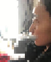 北京八大处整形张智勇做人工骨下巴案例 术后看看效果杠杠的