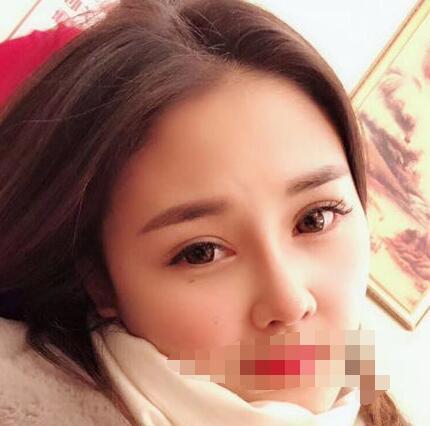 上海九院整形戴传昌做隆鼻案例 175天后美鼻的变化心里体会