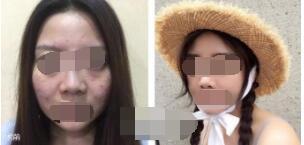 南京光尔美整形祛斑案例 简单分享下我的变美历程