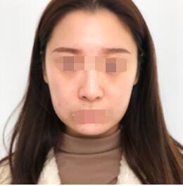 北京联合丽格卓彦整形面部除皱案例 花了将近2万哦 看看我的变化
