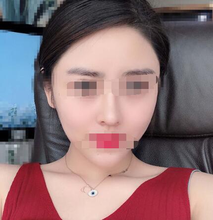 上海百达丽整形沈国雄隆鼻案例 术后超级美的哦