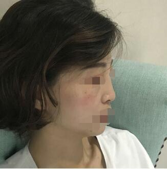 南方医院整形冯传波医生隆鼻案例 看看我的分享心得和变化图