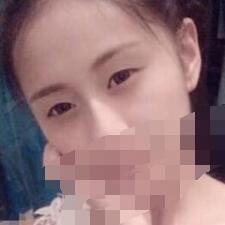 北京金炫澈整形无痕双眼皮案例 说说术后79天的心得体会