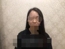 上海九院整形濮哲铭医生隆鼻案例 时间过得真快 术后3个月了