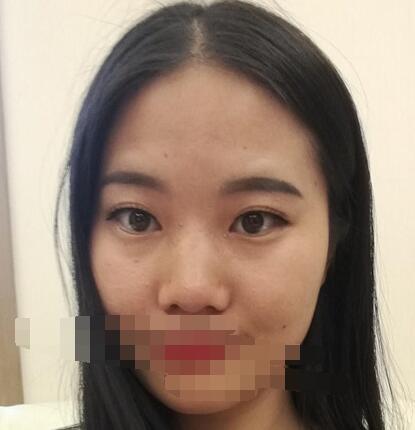 成都米兰柏羽整形陈倩做隆鼻案例 来反馈67天术后变美心得