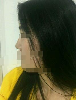 ?#26412;?#27704;成魅力整形田永成医生隆鼻案例 分享我的?#21672;?#32463;历
