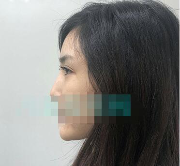 成都娇点医院做自体脂肪面部填充+软骨隆鼻案例 术后反馈心得体会